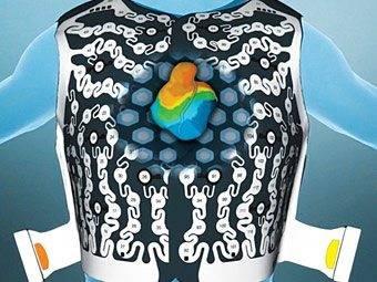 Medtronic CardioInsight EC Vue Vest