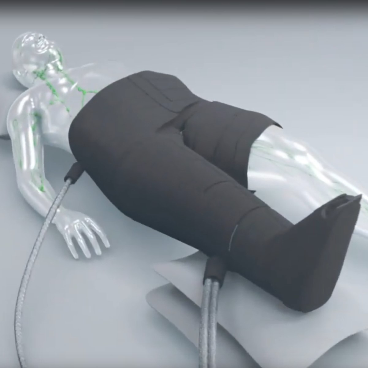 Nottingham Spirk Medical Device Innovation - Flexitouch Plus